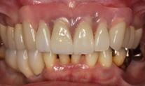 部分入れ歯2